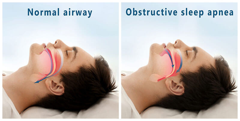 normal airway vs obstructive sleep apnea